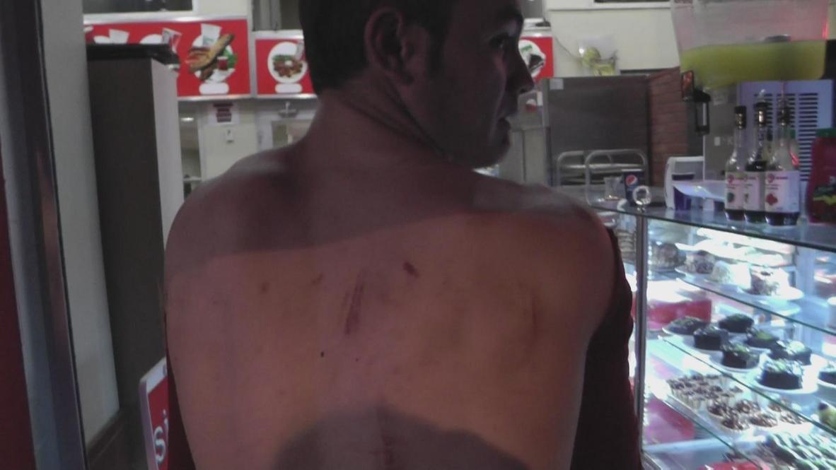 Turkey: An Ankara baker's story of unprovoked police violence