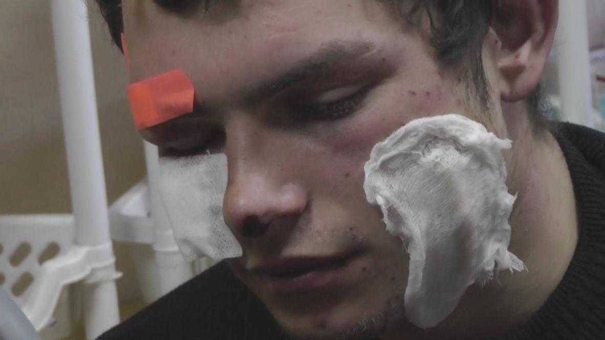Ukraine: Injuries increase as police throw grenades, fire bullets
