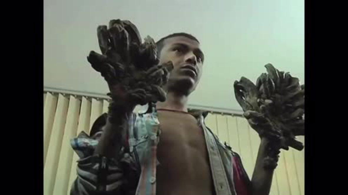 Bangladesh: 'Treeman' to undergo surgery on bark-like warts