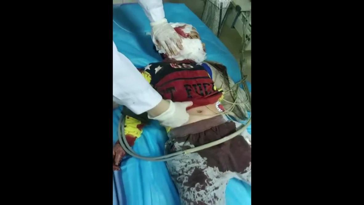 China: 14 niños son apuñalados por una mujer armada con un cuchillo en una guardería de Chongqing *EXPLÍCITO*
