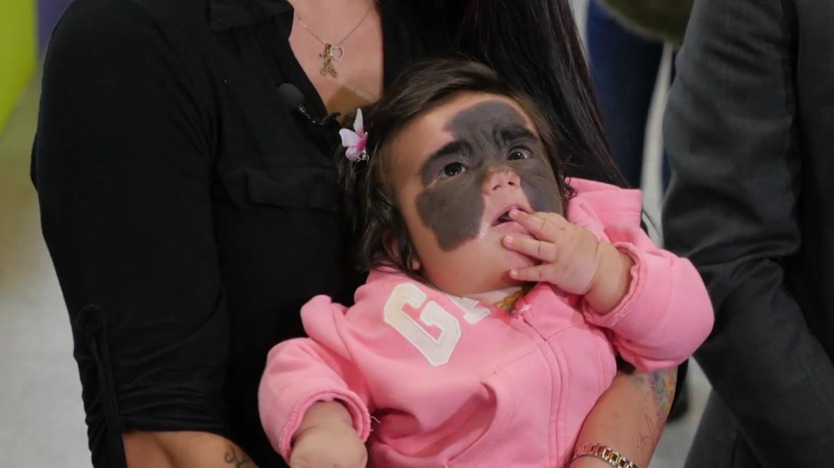 Russia: Florida baby with 'Batman' birthmark arrives in Krasnodar for pioneering treatment