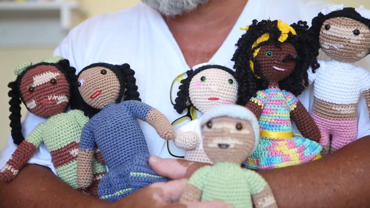 Un abuelo brasileño crea MUÑECAS con vitíligo para niños con trastornos de la piel