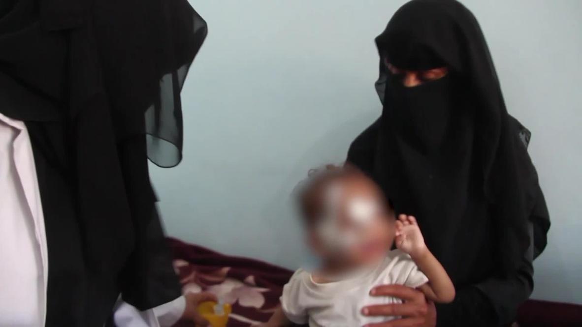 اليمن: اليونيسف تحذر من ارتفاع معدل سوء التغذية الحاد لدى الأطفال في أنحاء مختلفة من البلاد